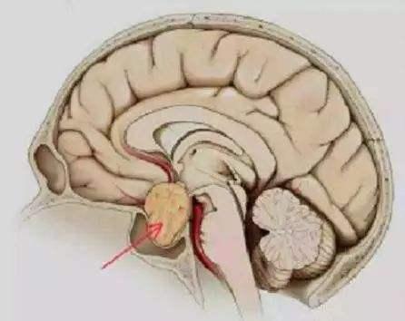 治疗脑垂体瘤的四个方法