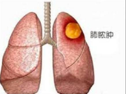 肺脓肿是怎么引起的?
