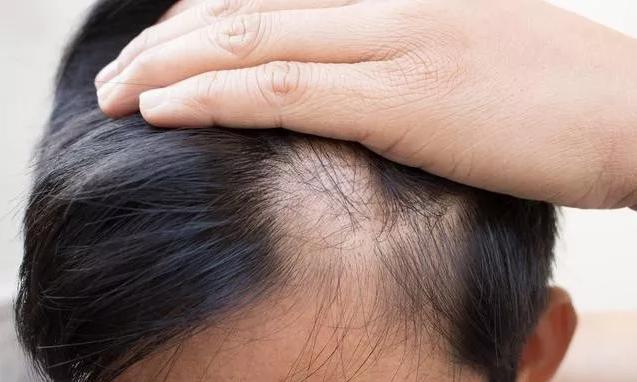 斑秃该如何治疗?进来教你几个土方法