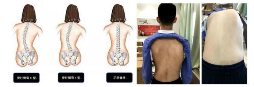 10岁左右的孩子后背不平,很有可能是脊柱侧凸