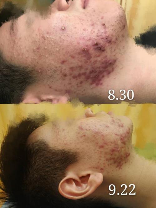 泰生堂景明夷皮肤科专家:准确把握病机,才能解决皮肤疾病困扰。