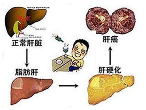 中度脂肪肝禁止吃什么?
