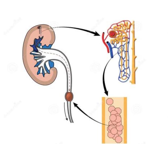 肾结石是怎么形成的?来听听专家的意见!