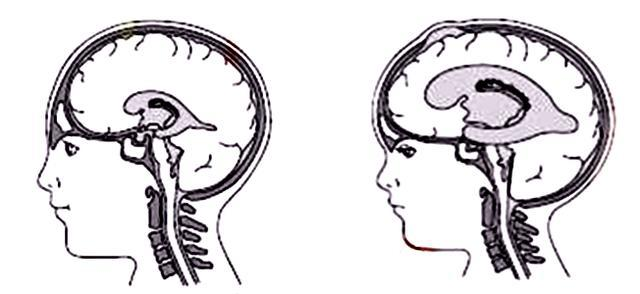 脑袋大的小孩是聪明还是脑进水?细说脑积水的种种危害