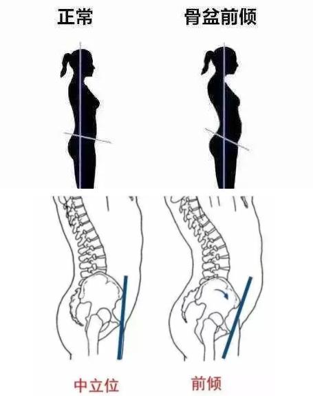 纠正骨盆前倾 告别腰背疼痛腹突出