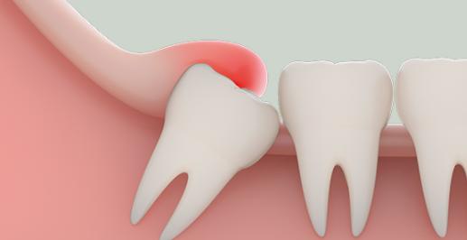 什么是智齿智齿的病因和症状有哪些 如果出现智齿一定要尽早去医院就医