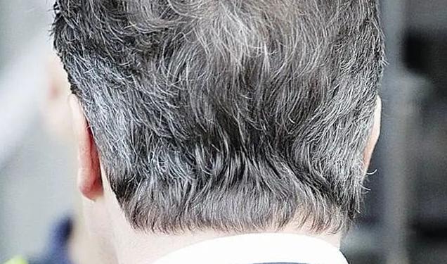 长白发的位置暗示健康状况 这三个地方长白发要特别小心