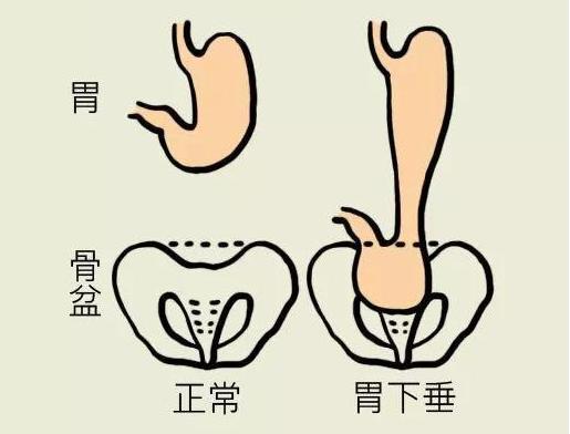 胃下垂吃什么药?胃下垂有哪些治疗方法?