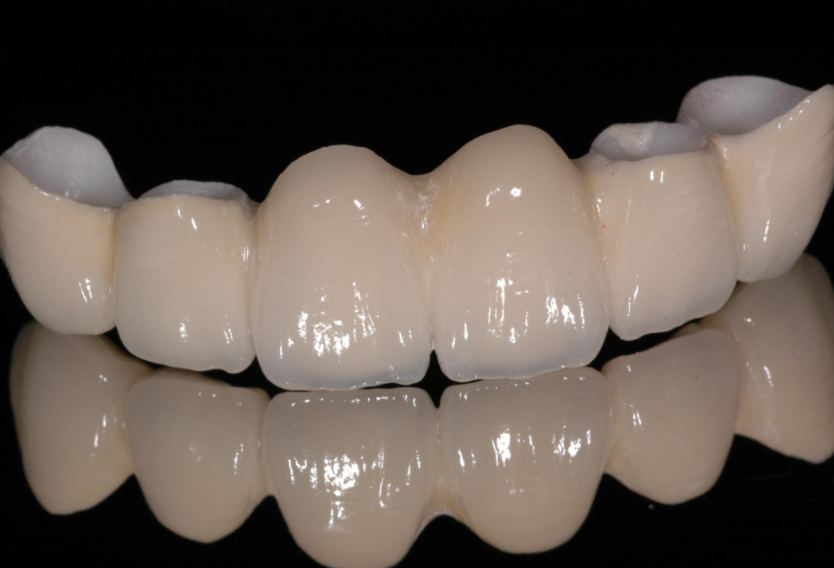 镶牙用什么材料好?不同的补牙材料到底有什么不一样?