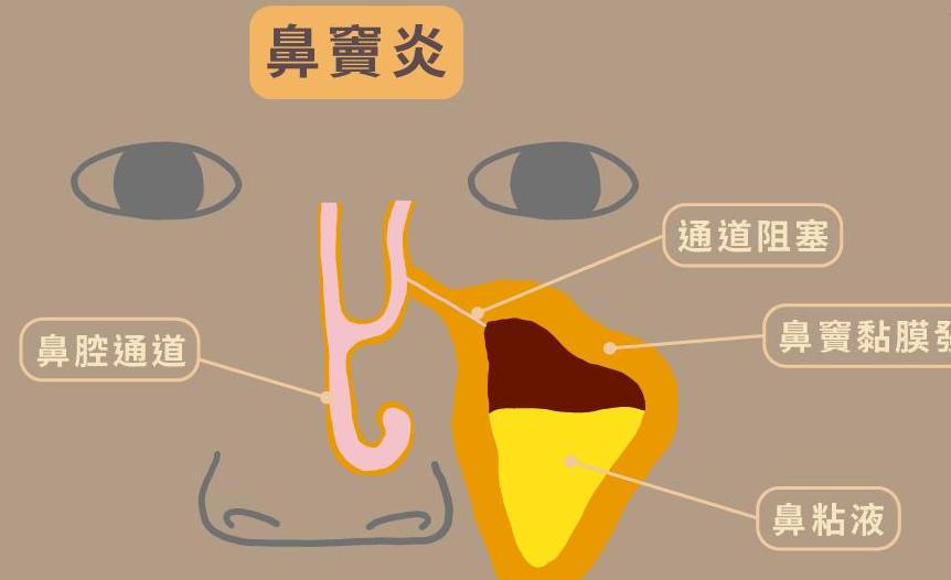 鼻窦炎有什么症状 鼻窦炎怎么治疗