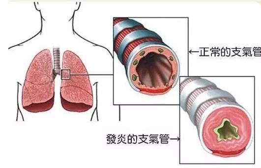 支气管扩张症状,你一定要知道