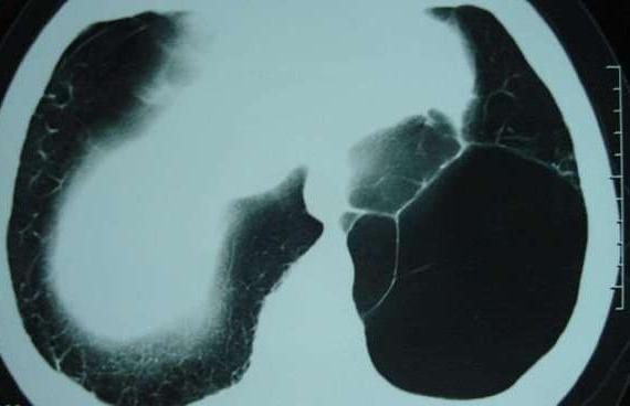 肺大泡是什么病?肺大泡有什么危害?