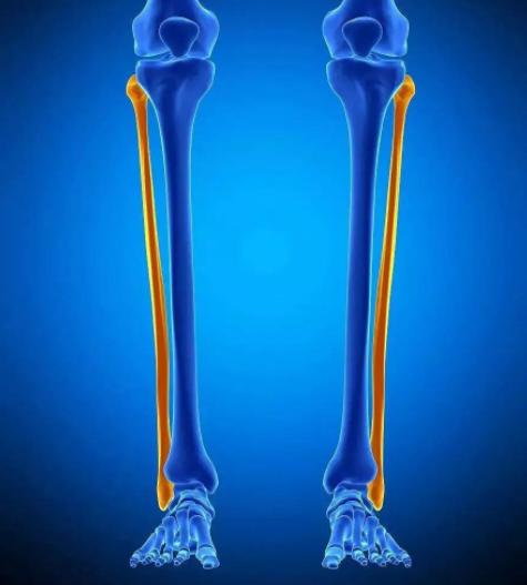 腓骨骨折怎么治?腓骨骨折患者一定要看