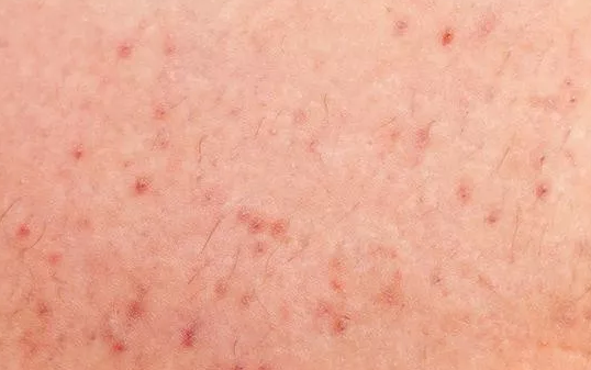 毛囊炎最佳治疗方法,毛囊炎的治疗方法有哪些?