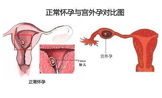 宫外孕的症状?宫外孕的早期表现有哪些?