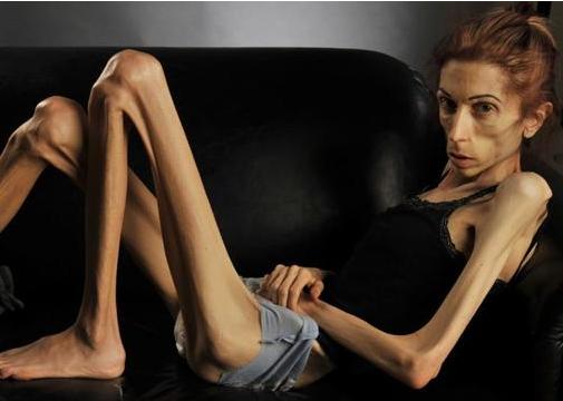 厌食症怎么治?引起厌食症的原因?