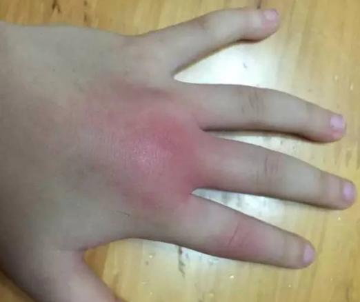 被蜈蚣咬伤了怎么快速急救处理?