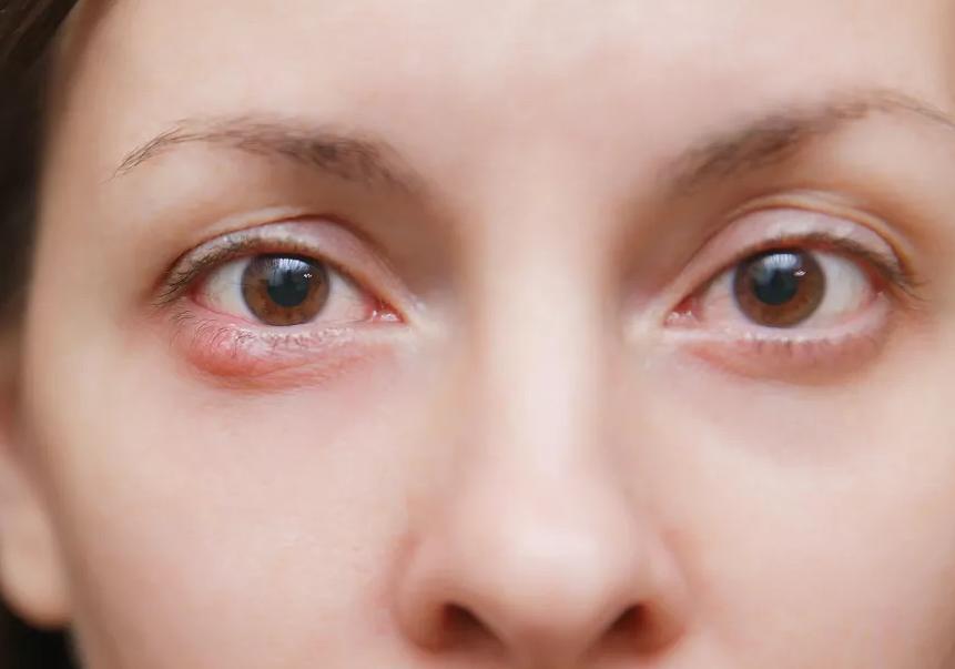 眼压高有哪些症状?眼压高怎么缓解?
