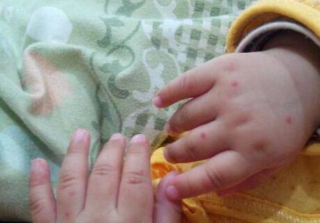 手足口病初期病症表现?手足口病怎么护理?