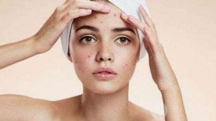 脸上老是长痘痘是什么原因引起的呢?我们应该如何有效预防长痘?