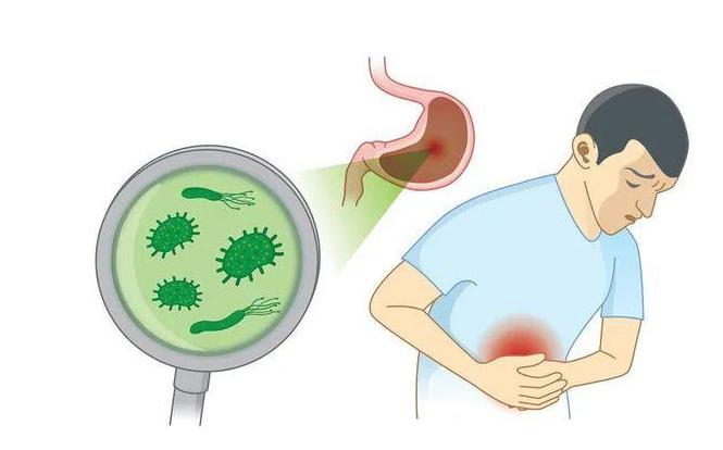 幽门螺旋杆菌的病症是什么?感染幽门螺旋杆菌有哪些症状?