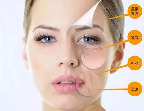 【皮肤衰老】皮肤衰老怎么补救 女人抗衰老的三大攻略方向及保养措施