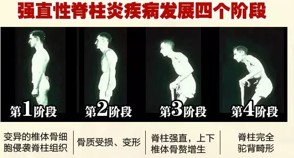 强直性脊柱炎的症状?关于强直性脊柱炎你了解多少?