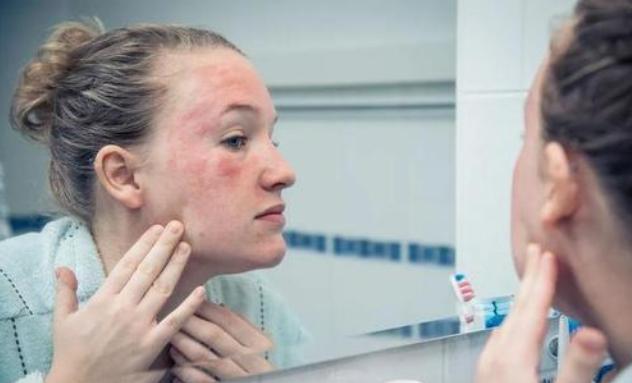 夏季过敏性皮肤女性该如何保养?最适合夏季过敏性皮肤女性的食谱推荐