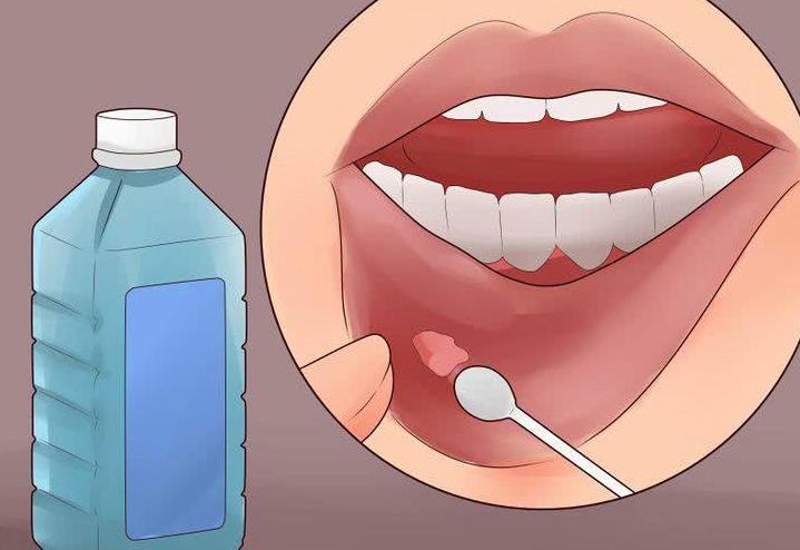 口腔溃疡上为什么有一层白色的膜?口腔溃疡上的白膜可以揭掉吗?