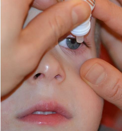 儿童可以用眼药水吗?儿童什么时候可以用眼药水