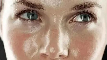 夏季为什么脸上容易出油?夏季脸上出油多需要勤洗脸吗?