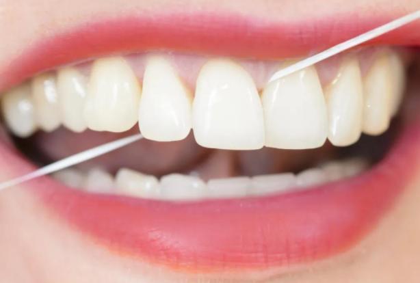 经常使用水牙线会伤牙吗?哪些人适合使用水牙线?
