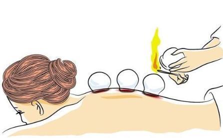 关于拔火罐的那些事儿:拔火罐误区和拔火罐位置选择!