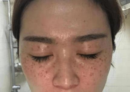 皮肤有雀斑,是选光子好还是激光好呢?