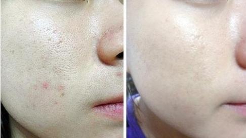 光子嫩肤可以祛斑吗?关于光子嫩肤你究竟了解多少?