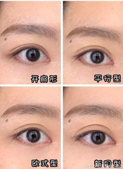 双眼皮的那些事儿之关于双眼皮的十大事实!