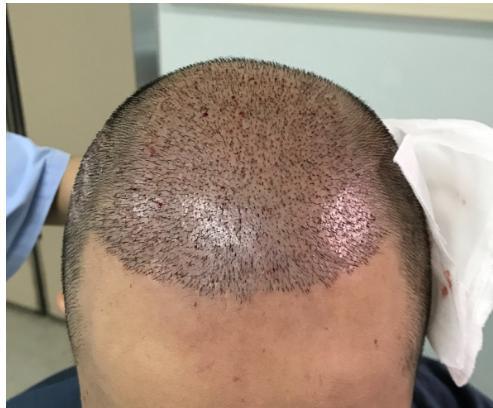 关于植发,你了解多少!