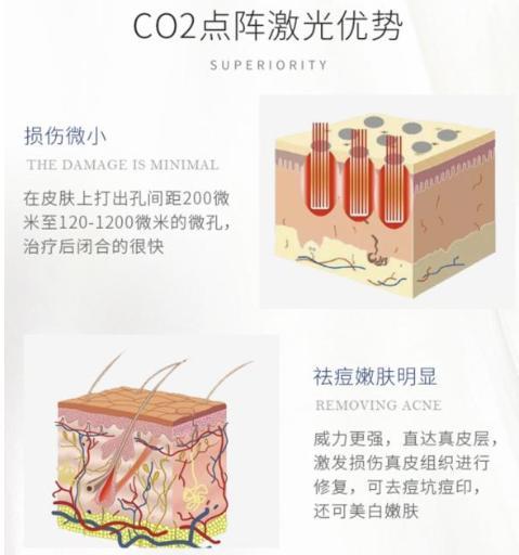 修复面部痘坑的点阵二氧化碳的激光究竟是什么?