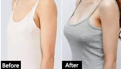 关于假体隆胸的几大问题,隆胸女孩必知