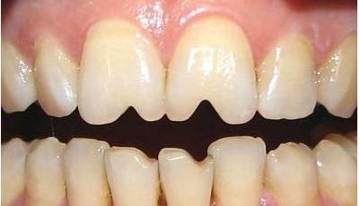 牙齿缺失怎么修复,修补牙齿材料价格到底如何选择呢?