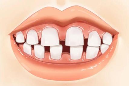 牙齿牙缝过大怎么办,有什么处理方法及注意事项呢?