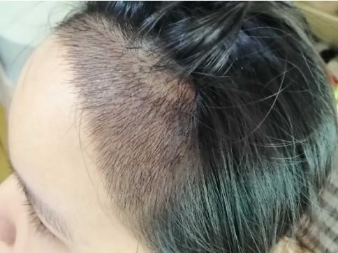 关于植发的那些事,种植头发多少钱,有没有什么危害?