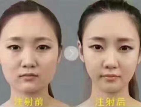 打完瘦脸针后多久能怀孕?有没有什么注意事项和需要注意的?