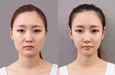 打瘦脸针绝对有用?哪些脸型适合打瘦脸针,那些人不适合……