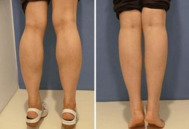 想要快速瘦腿,是该吸脂还是该打瘦腿针呢,两者效果哪个更好呢?