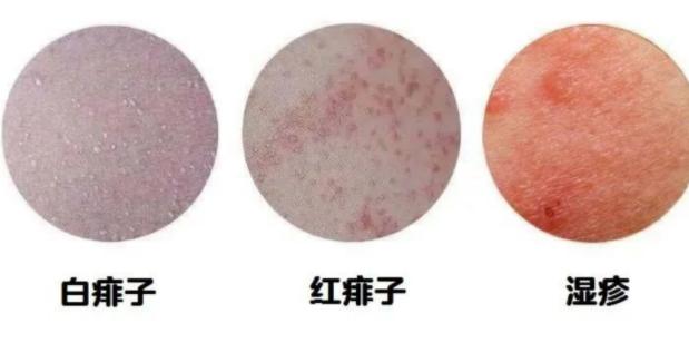 宝宝长湿疹是什么原因?治疗宝宝湿疹的办法有哪些?宝宝湿疹小知识?