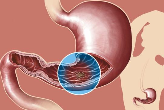 糜烂性胃炎如何养生?糜烂性胃炎如何健康饮食?糜烂性胃炎饮食的注意事项?