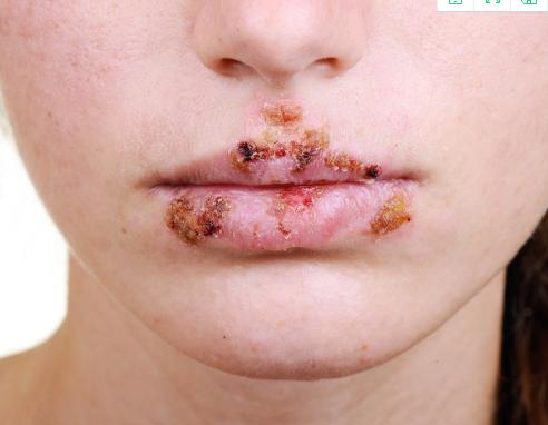 冬季是疱疹的高发期吗?疱疹产生的原因?冬季如何预防疱疹产生?