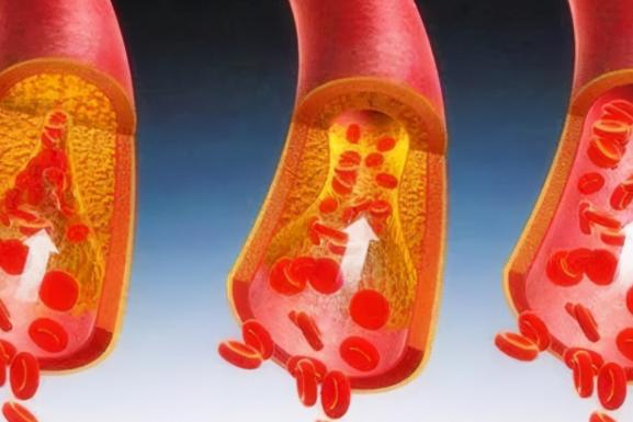 常吃鱼肉可以疏通血管堵塞吗?哪些食物可以预防和疏通血管呢?