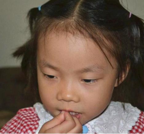 孩子怎么总是啃指甲?孩子啃指甲源于哪些因素?